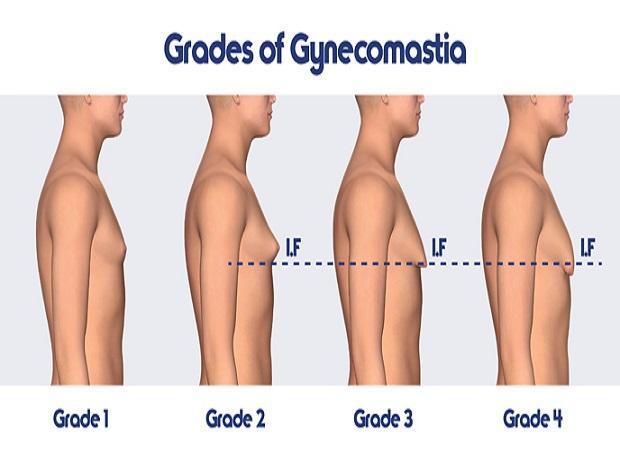 Gynecomastia  Best Hospital In Kukatpally  Padmaja Hospital-5474
