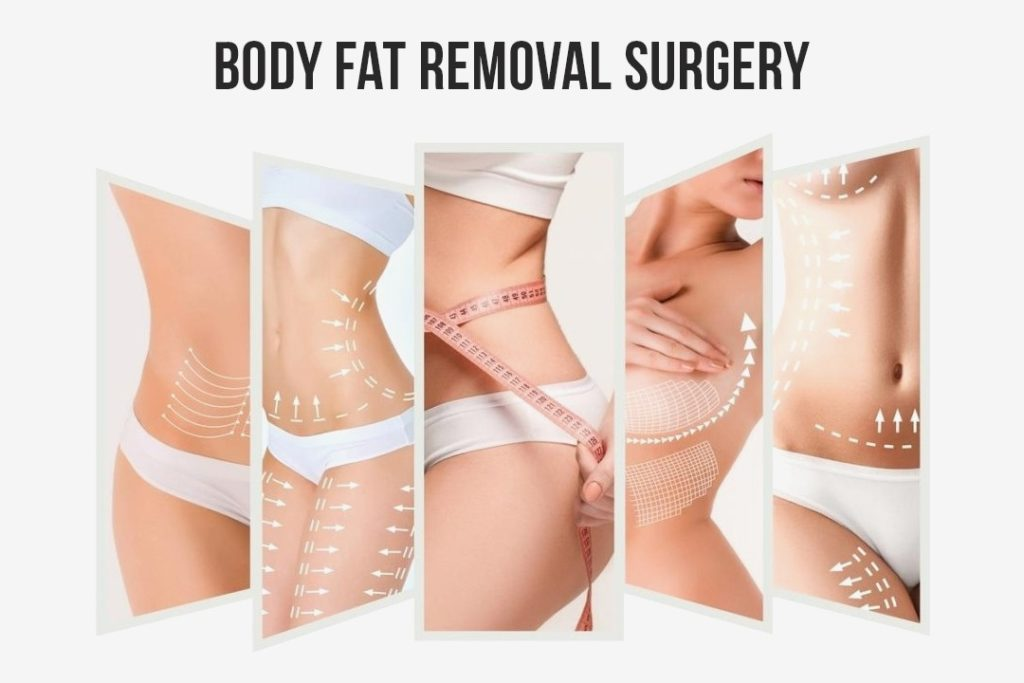 Fat Removal Surgery Hyderabad-Best hospital in kukatpally