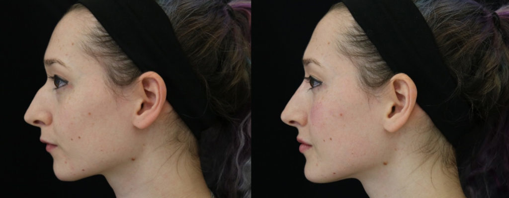 RHINOPLASTY NOSE RESHAPING SURGERY, nose reshaping surgery | Best